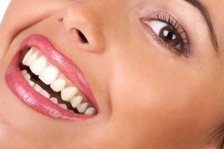 Toothwhitening and Smile Makeovers